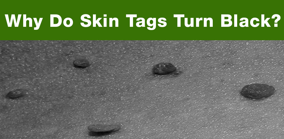 how to remove a black skin tag