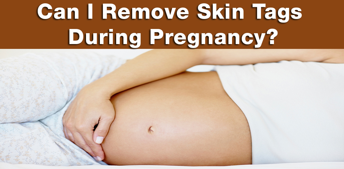 skin tags during pregnancy