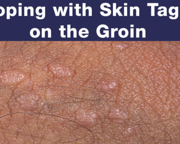 Coping With Skin Tags On The Groin