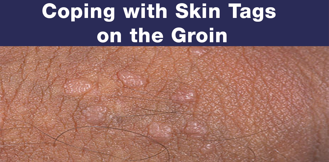 skin tags on groin