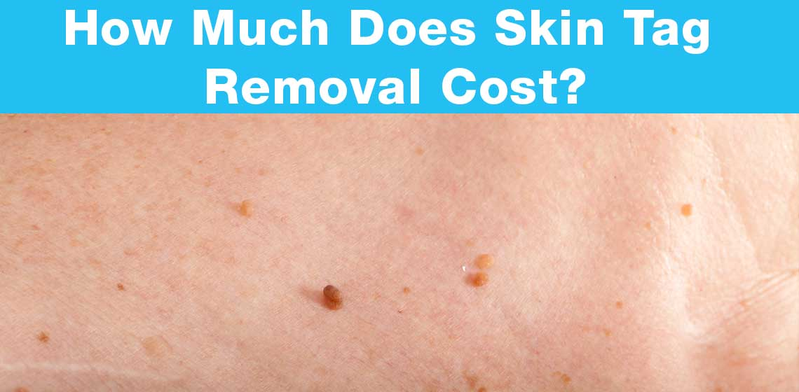 Skin Tag Removal Cost
