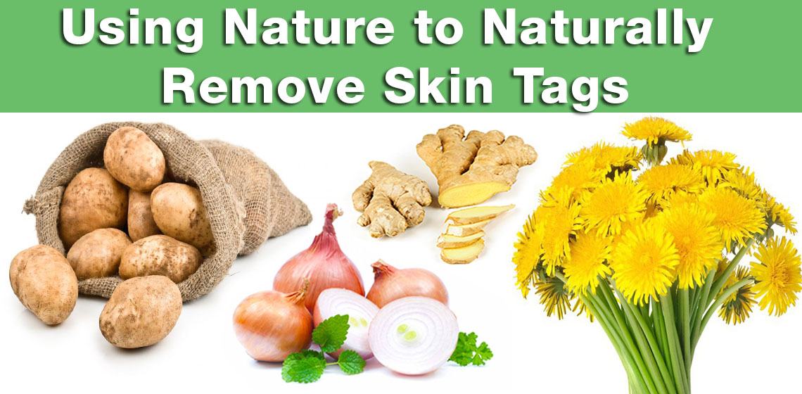 naturally remove skin tags