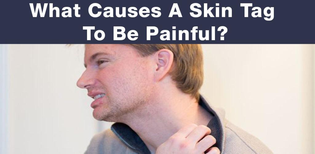 skin tag pain