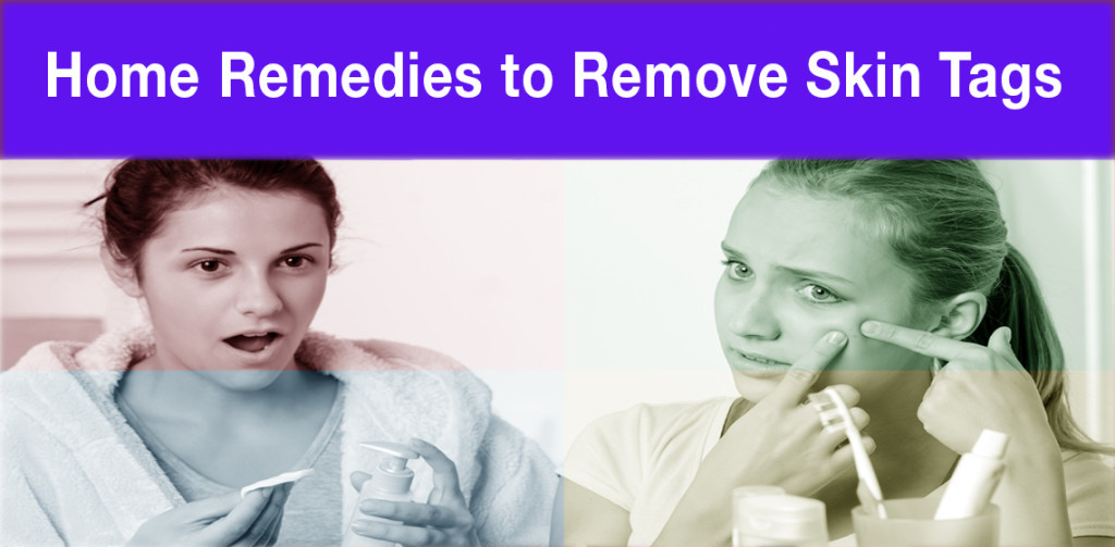 Home Remedies to Remove Skin Tags