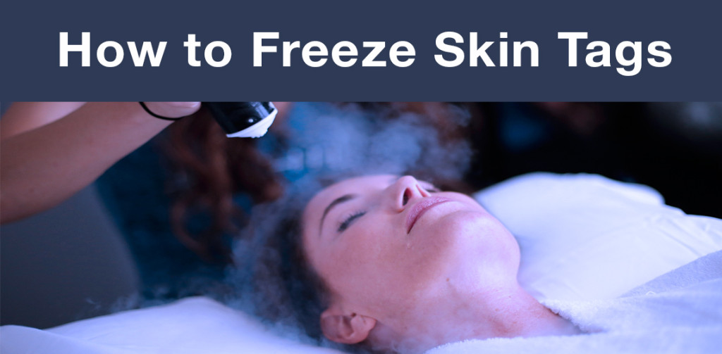 freeze skin tags