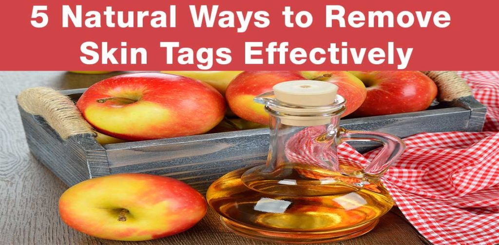 ways to remove skin tags