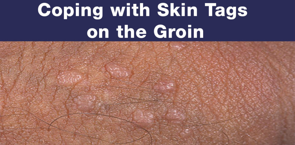 Skin Tags On The Groin