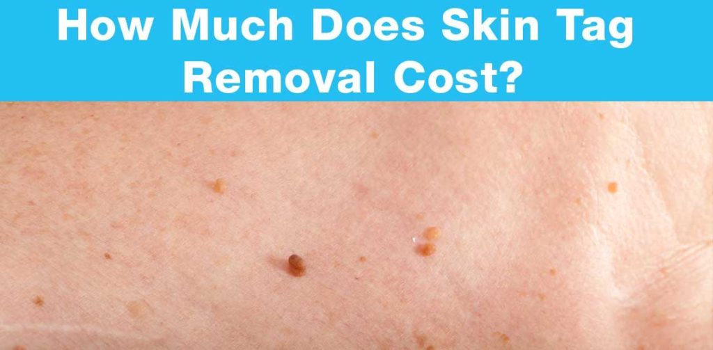 Skin Tag Removal Cost Naturalskins